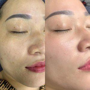 Làn da là nơi dễ để lại dấu hiệu lão hóa trên cơ thể, đặc biệt là trên khuôn mặt
